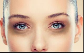 Berikut Ini Cara Hilangkan Lingkar Hitam Di Sekitar Mata