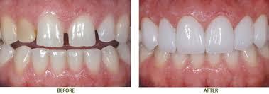 Tìm hiểu các phương pháp chỉnh răng thưa hiệu quả2