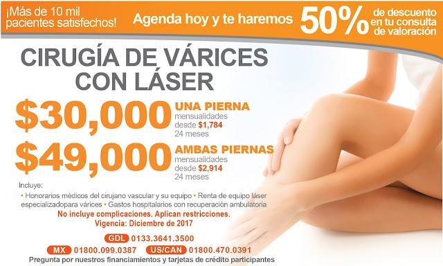 Precio Paquete Cirugia Varices con Laser Safenectomia Guadalajara Mexico