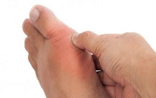 penyebab penyakit asam urat