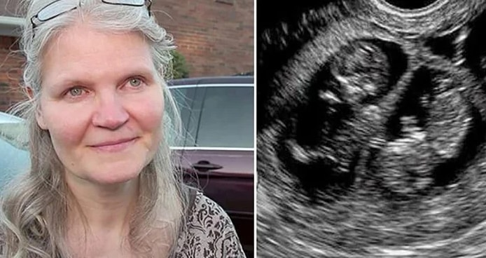 A 42-Year-Old Woman Is Pregnant With Triplets. But What Comes Out Of Her Womb Surprised The Doctor
