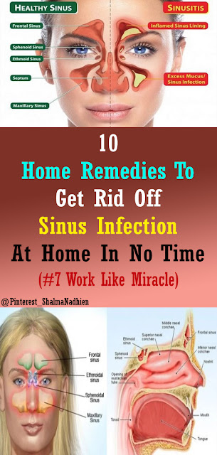 Sinus Infection Treatment: 10 Home Remedies #HealthRemedies