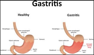 askep pasien gastritis nanda nic noc