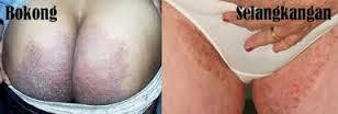 Obat Ampuh Tradisional Untuk Gatal Kulit Pada pantat Atau Bokong