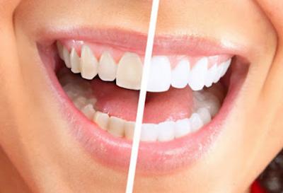 4 Cara Memutihkan Gigi yang Bisa Dicoba