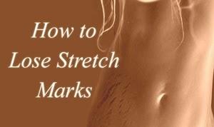 Cara Cepat Menghilangkan Stretch Mark