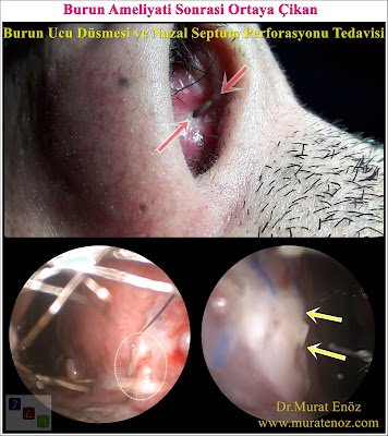 Nasal septum perforation closure in İstanbul, Turkey - Surgical treatment of nasal septal perforation in İstanbul - Open technique repair of nasal septal perforations in Turkey - Repair of nasal septal perforation - Septal perforation repair surgery