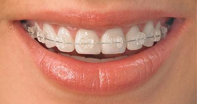 Niềng răng là gì? Niềng răng đẹp cỡ nào?