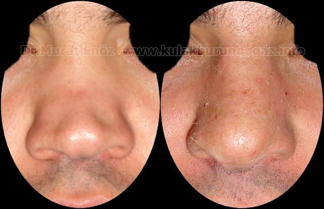 Semer burun deformitesi nedir? - Semer burun nedenleri - Semer burun tedavisi - Saddle nose nedir? - Saddle nose anlamı - Semer burun ameliyatı - Kaburga kıkırdağı ile revizyon burun estetiği