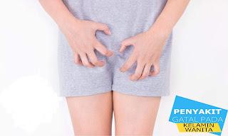 obat gatal pada kelamin tradisional