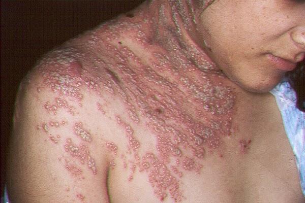 cara menyembuhkan penyakit herpes