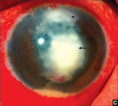 Fig. 6C: Satellite lesion which are pathognomic for fungal corneal ulcers (½ Satellite lesion ← Main lesion)