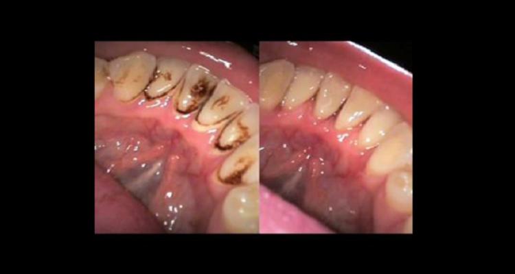 وصفة فعالة للتخلص من تسوس الاسنان بشكل فوري