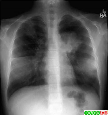 Multilobar in ltrate in a school-aged child with Mycoplasma pneumonia