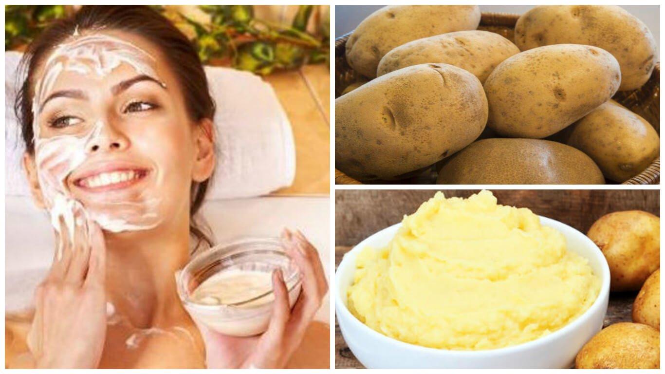 La crème médicale pour le blanchiment des taches de pigment