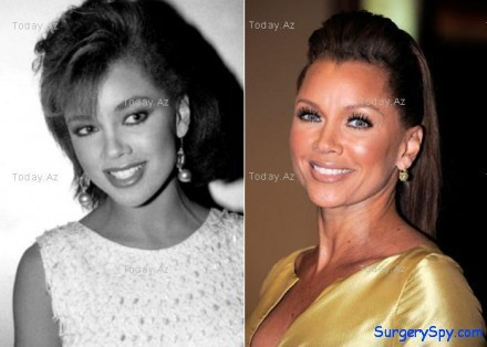 vanessa williams plastic surgery before and after botox and nose job