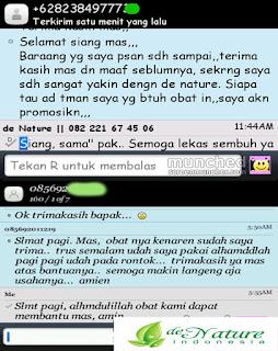 Testimoni Kesembuhan Obat Kitil Kelamin Denature Indonesia Obat kutil manjur
