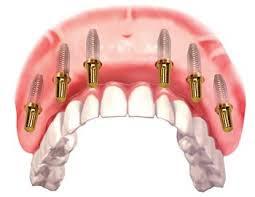 Mất răng nguyên hàm trồng bao nhiêu trụ implant ?