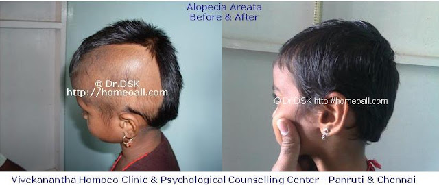 Alopecia Areata - புழுவெட்டு சிகிச்சை - Pulu vettu Treatment in Chennai