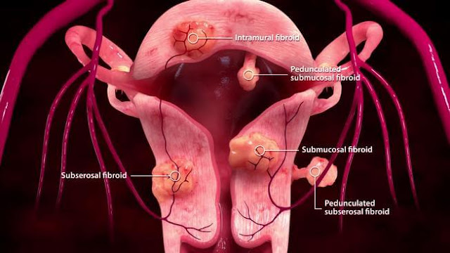 How To Shrink Fibroids Naturally Without Surgery