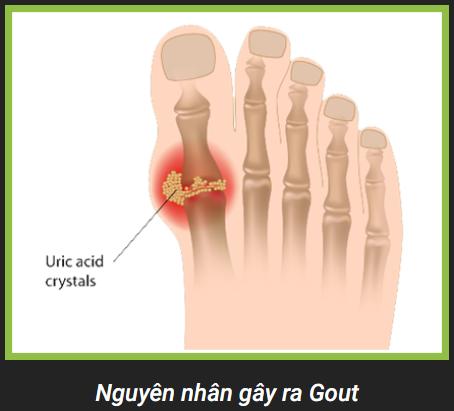 Nguyên nhân gây ra gout