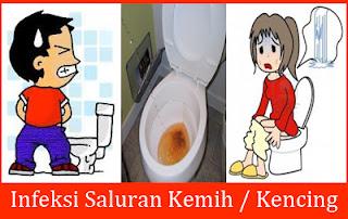 https://de-natur-indonesia.blogspot.com/2018/01/kencing-sakit-terasa-panas.html