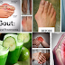 Cure Arthritis Fast With These Home Remedies
