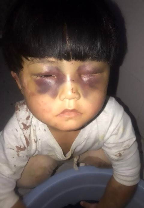 Heartbreaking images of 4-year-old girl beaten by her father, chained to the toilet, and made to wash his clothes