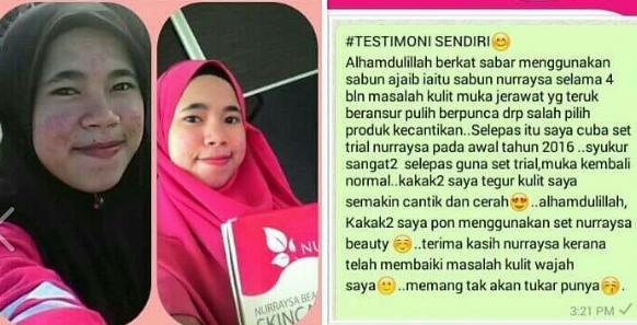 nurraysa beauty skincare berkesan