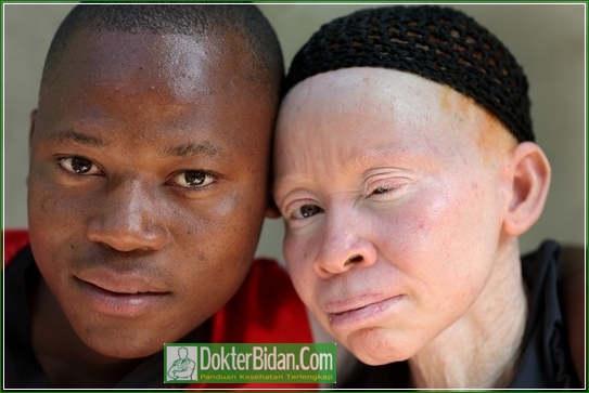 Pengobatan Penyakit Albinisme - Penyebab Gejala Diagnosis dan Cara Mengobatinya Dengan Herbal Alami Yang Ampuh