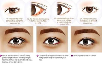phẫu thuật mở rộng đuôi mắt