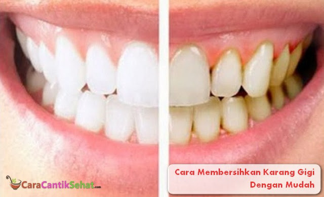 Cara Membersihkan Karang Gigi Dengan Mudah