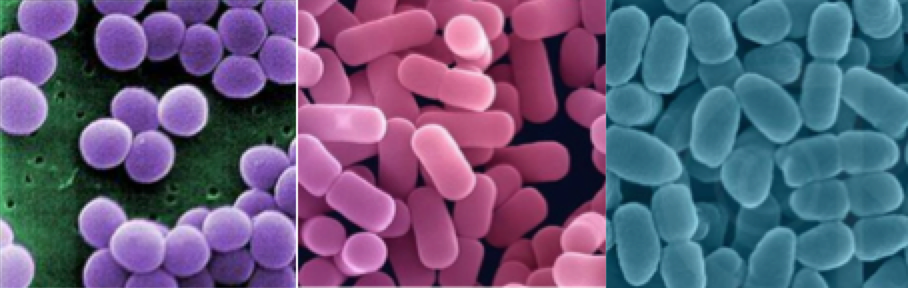 Gram Positive Diplobacillus