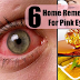Cure Conjunctivitis or Pink Eye Using This Top 5 Home Remedies Seen At Your Kitchen!