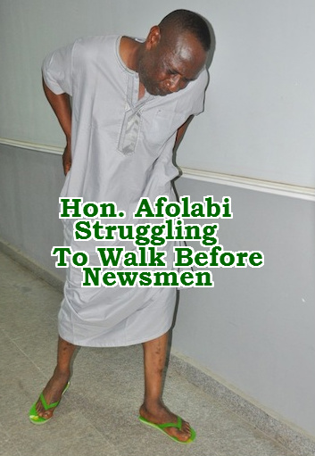 hon afolabi struggling to walk