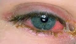 Foto de ojo con conjuntivitis