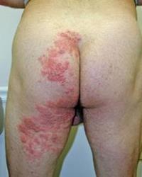 Obat Gatal Pada Pantat Atau Bokong | Obat Herbal Alami Tanpa efek Samping