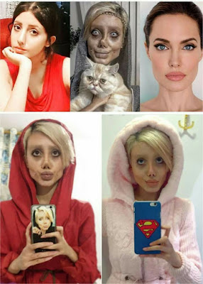 Real Face Of the 22 year-old Girl Who Really undergo 50 Plastic Surgeries To Look Like Angelina Jolie