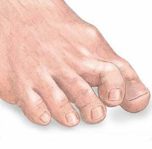 This is a condition of the feet where the toes, usually the toes after the big toe, curl up from the middle joint.