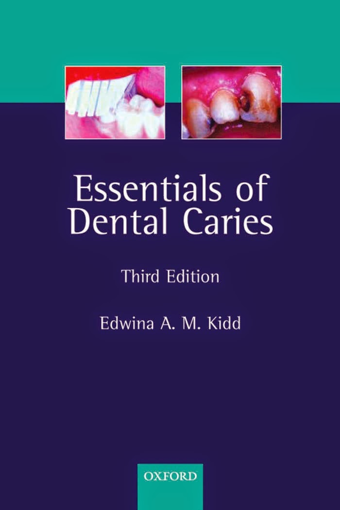 Essentials of Dental Caries - Edwina Kidd