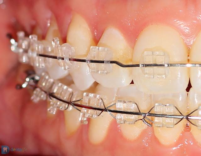 Tratamiento de ortodoncia con brackets transparentes de cristal zafiro realizado en Consultorio Dentalife