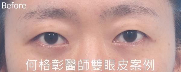 訂書針開放式雙眼皮術前