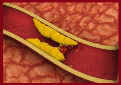el tomate reduce el colesterol