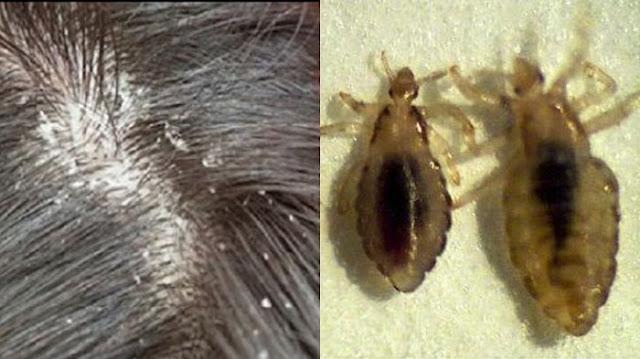 Bahaya Kutu Rambut (Pediculus Humanus Capitis) Tidak Boleh Diremehkan! Layyinatul Fadlilah