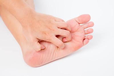 kaki gatal dan melepuh saat hamil, cara mengatasinya