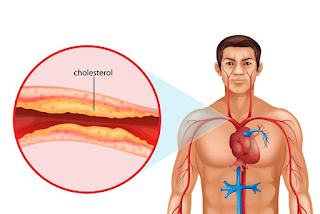 Cholesterol Affect The Body? Types, Symptoms, Causes, Diagnosis, and Treatment