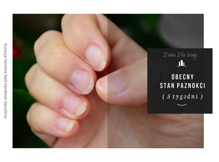 Herome Nail Hardener Sensitive - Odżywka utwardzająca paznokcie w 21 dni!!! Efekty mojej kuracji