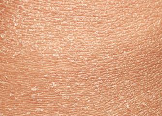 Cara atasi kulit kering saat puasa