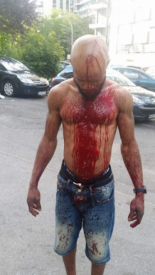 Photos: Nigerian man raises alarm over threat to his life following a brutal attack by a drunken couple in France