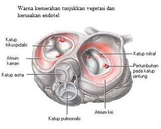 Ilustrasi gambaran endokarditis infektif jantung
